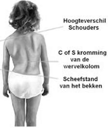 Scoliose bij kinderen